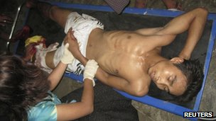 Injured people are treated in Sittwe General Hospital in Sittwe, Burma's Rakhine province, late on Sunday