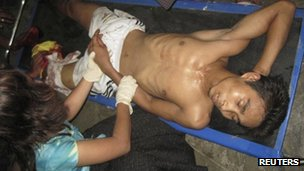 Injured people are treated in Sittwe General Hospital in Rakhine June 3 2012.