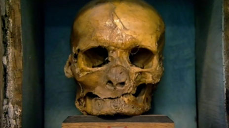 Skull of Simon Sudbury