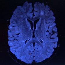 A scan of Emily's brain