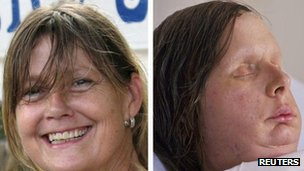Before and after photos of Charla Nash whose face was left severely disfigured after she was attacked by a chimpanzee in Connecticut, US
