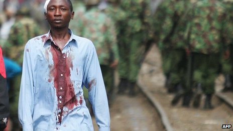 A Kikuyu man living in the Kibera slum of Nairobi walks with his bloodied shirt away from Kenyan police during ethnic clashes, 29 January 2008