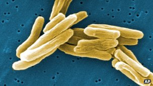 TB bacteria under the microscope