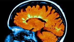 Brain of a person with MS