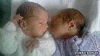 Twins born in different countries