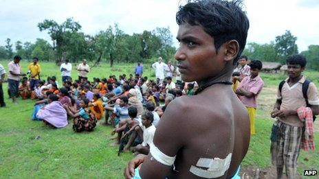 Villager Kaka Ramesh reveals his injuries to the fact-finding team in Kottaguda village on 7 July 2012