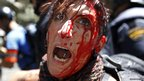 A woman covered in blood during a protest