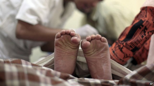 A boy is circumcised during a mass circumcision in Indonesia