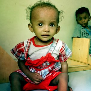 A Yemeni girl at a malnutrition centre