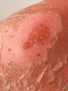 Skin cancer rise 'due to explosion in holidays and sunbeds in 1970s'
