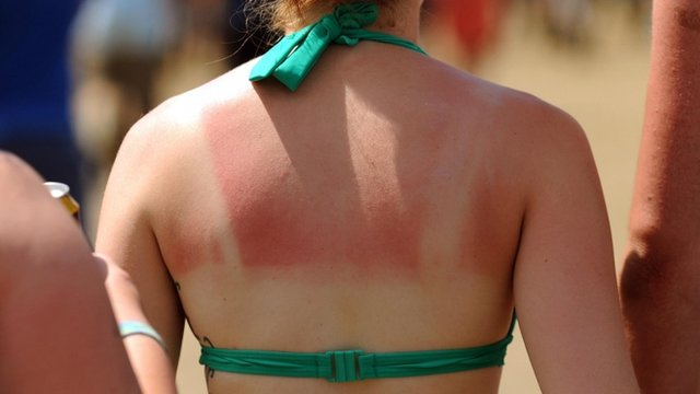 A woman with sunburn