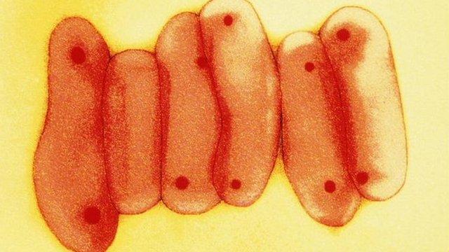 Tuberculosis virus bacteria