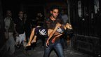 A Syrian man carries badly wounded five-year-old Mohammed Amumrej after he was hurt during shelling by Syrian government forces in Aleppo late on 25 July