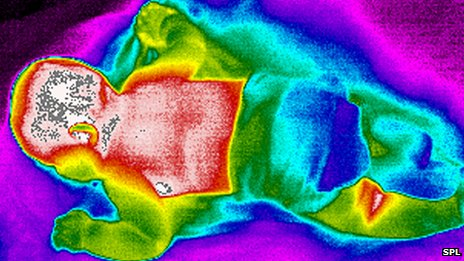 Baby thermogram image which senses heat