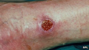 leg ulcer