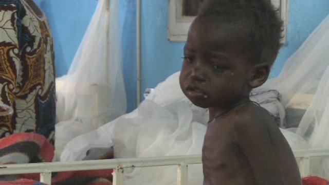 Malnourished child in Niger
