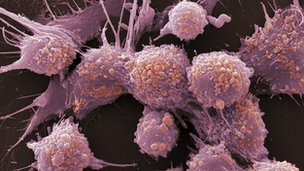 Prostate cancer cells