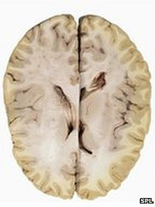 Brain image