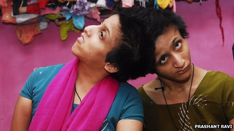 Conjoined twins Saba and Farah Shakeel