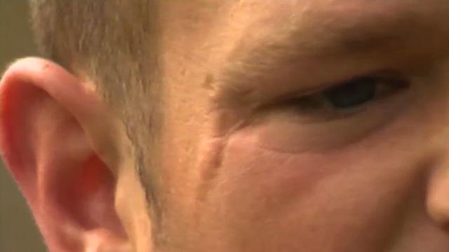Glassing victim, Christian Hughes