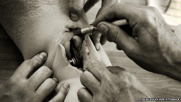 Técnico de corte abra o revestimento de espuma de uma prótese de perna acima do joelho com um bisturi para expor a articulação do joelho mecânico