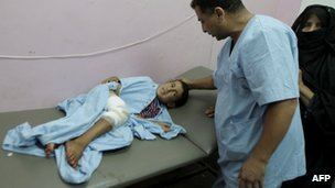 Palestinian child injured in Israeli air strike on Gaza (10/09/12)