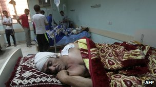 A wounded Iraqi man lies on a hospital bed following a blast in Baghdad's mainly Shia Sadr City district, on 10 September
