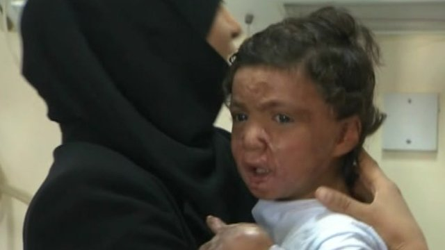 Injured Syrian child