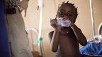 Four-year-old Wara Fonah at the Makeni regional hospital, district of Bombali