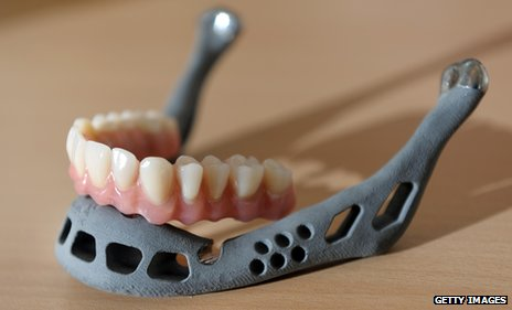 Artificial jaw made in a 3D printer in Germany