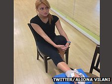 Aliona Vilani with an ice pack