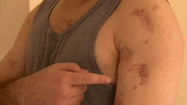 Afghan interpreter's scars