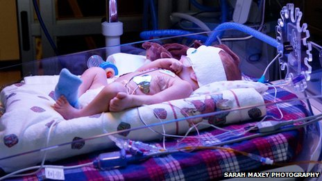 Baby in intensive care