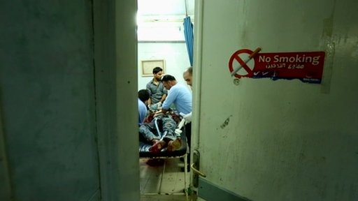 A view of one of the two operating beds in the Aleppo hospital