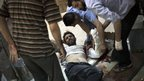 Syrian doctors treat a man wounded by Syrian Army shelling at Dar al-Shifa hospital in Aleppo (11 October 2012).