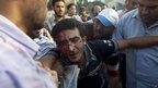 Injured protester. Cairo 12 Oct 2012