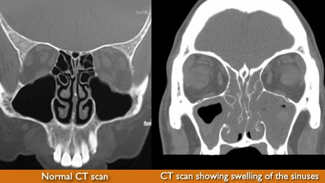 CT scans showing sinus swellings