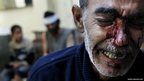 Kamal, the father of an eight-year-old girl who was fatally wounded cries while being treated in a local hospital