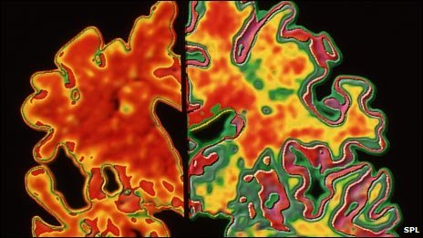 Alzheimer&#039;s brain (left) compared with healthy brain (right)