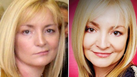 Debbie Johnston - whilst suffering from Bell's palsy, and having recovered