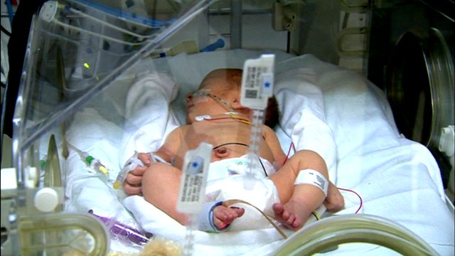 A baby in intensive care
