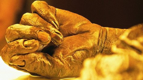 The hand of a person preserved for 2,000 years in peat in Ireland