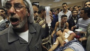 A wounded Palestinian on a stretcher at a hospital in Gaza City following Israeli shelling on 10 November.