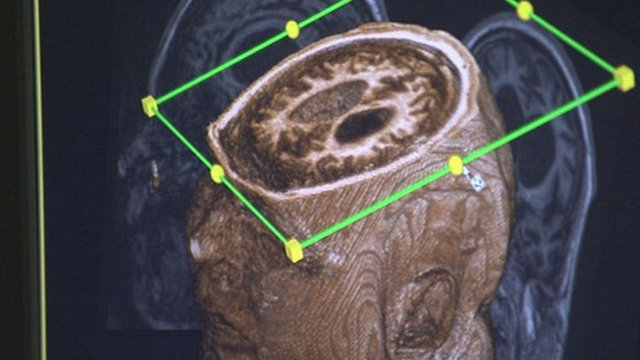 Scan of patient&#039;s brain in scanner