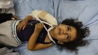 Palestinian child on a hospital bed following an Israeli air raid on Beit Lahia in Gaza (17 Nov)
