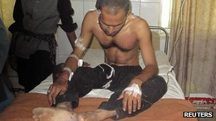A Pakistan man injured in the roadside bomb in a hospital in Dera Ismail Khan