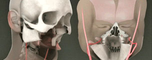 An graphic showing the first full facial transplant