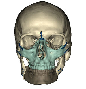 Skull showing transplant area for the operation on Richard Norris in the US in March 2012
