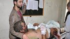 A man wounded by the blasts in Jaramana is treated in hospital (28 November 2012)