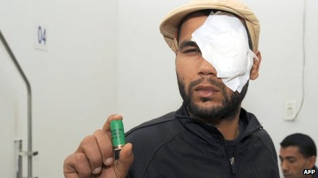 A Tunisian man shows a cartridge after he was injured during clashes with police in the town of Siliana on 28 November 2012